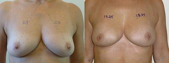 Scarless Breast Lift before 1197685