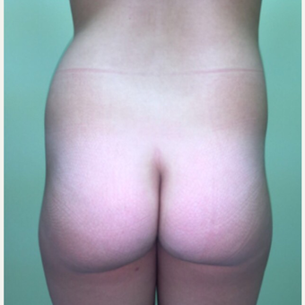 18-24 year old woman treated with Brazilian Butt Lift before 3006801