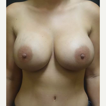 35-44 year old woman treated with Breast Implant Revision after 3447005