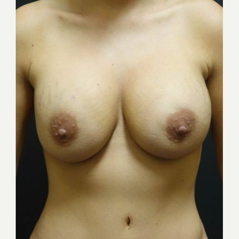 35-44 year old woman treated with Breast Implant Revision before 3447005
