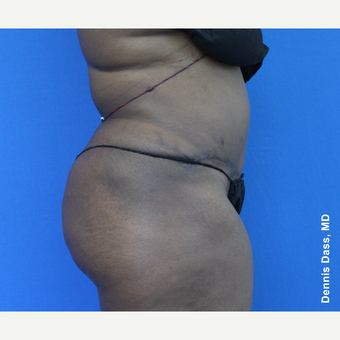 25-34 year old woman treated with Tummy Tuck after 3679887