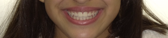 17 or under year old woman treated with Braces