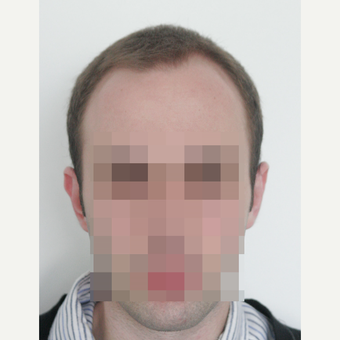25-34 year old man treated with FUE Hair Transplant before 3682611