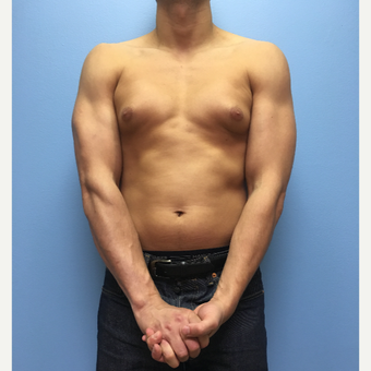 29 year old man treated with Male Breast Reduction before 3174620