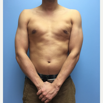 29 year old man treated with Male Breast Reduction after 3174620