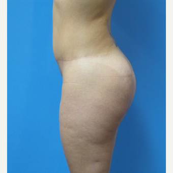 38 year old woman treated with Butt Implants after 3836499