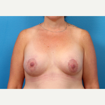 45-54 year old woman treated with Breast Augmentation after 3246913