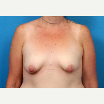 45-54 year old woman treated with Breast Augmentation before 3246913