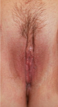 Labiaplasty after 3738661