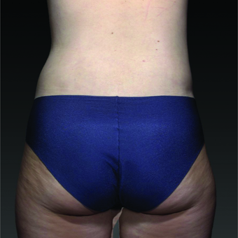 35-44 year old woman treated with Smart Lipo after 3803753