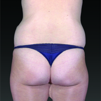 35-44 year old woman treated with Smart Lipo before 3803753