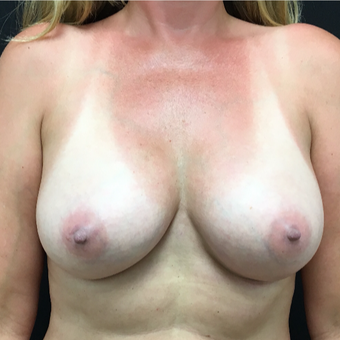45-54 year old woman treated with Breast Augmentation after 3493783
