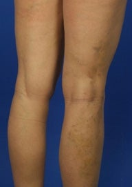 35 Year Old Female Treated For Varicose Veins