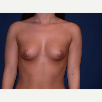 18-24 year old woman treated with Breast Augmentation before 3136322