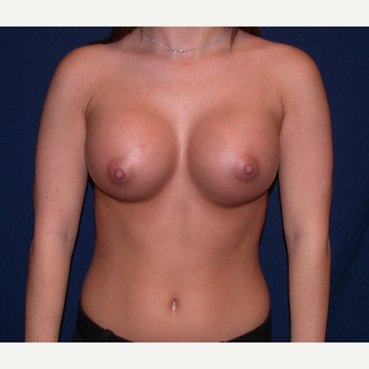 18-24 year old woman treated with Breast Augmentation after 3136322