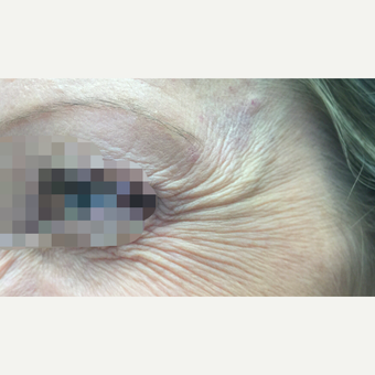 35-44 year old woman treated with Xeomin before 3768052