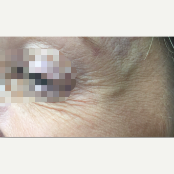 35-44 year old woman treated with Xeomin after 3768052