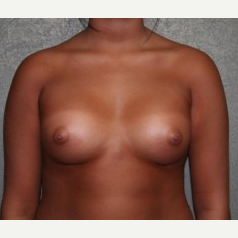 25-34 year old woman treated with Breast Implants after 3303916