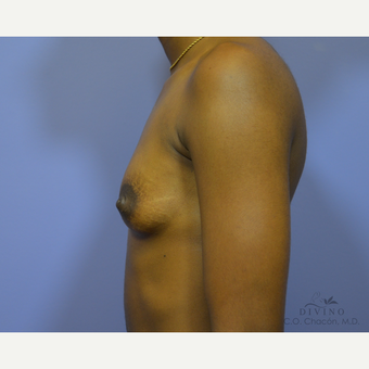 18-24 year old woman treated with Breast Augmentation before 3329366