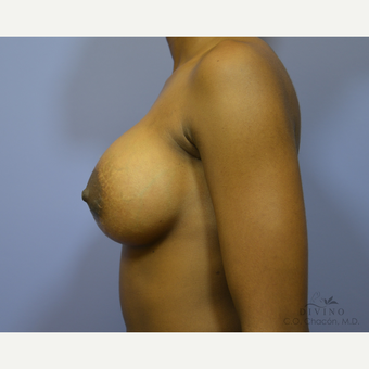 18-24 year old woman treated with Breast Augmentation after 3329366