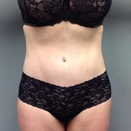 45-54 year old woman treated with Tummy Tuck after 1839200