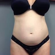45-54 year old woman treated with Tummy Tuck before 1839200