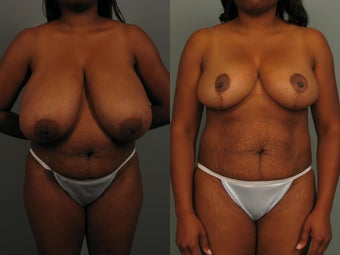 Breast Reduction before 1518482