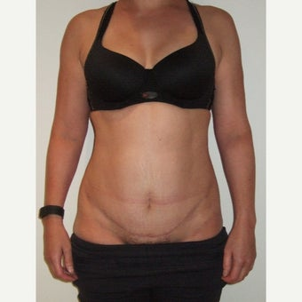 45-54 year old woman treated with Mini Tummy Tuck after 2468509
