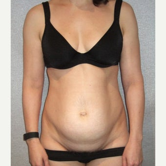 45-54 year old woman treated with Mini Tummy Tuck before 2468509