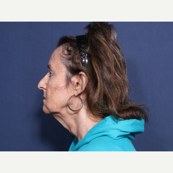 65-74 year old woman treated with Facelift (view 2 of 2) before 3260042