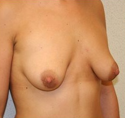 25-34 year old woman treated with Breast Augmentation 1571261