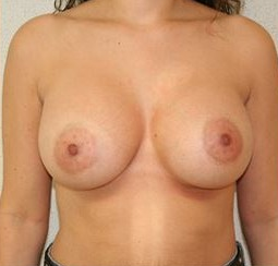 25-34 year old woman treated with Breast Augmentation after 1571261