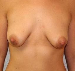 25-34 year old woman treated with Breast Augmentation before 1571261