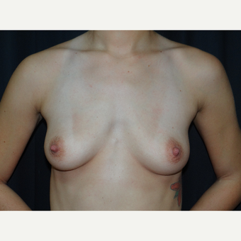 25-34 year old woman treated with Breast Implants before 3304275