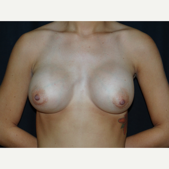25-34 year old woman treated with Breast Implants after 3304275