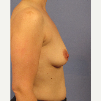 35-44 year old woman treated with Breast Augmentation before 3106750