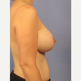 35-44 year old woman treated with Breast Augmentation after 3106750