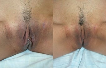 Labiaplasty before 3037829