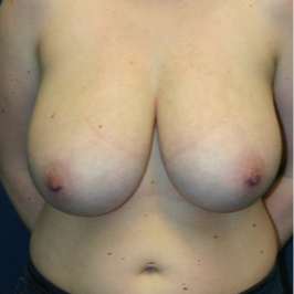 18-24 year old woman treated with Breast Reduction before 1675812
