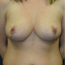 18-24 year old woman treated with Breast Reduction after 1675812