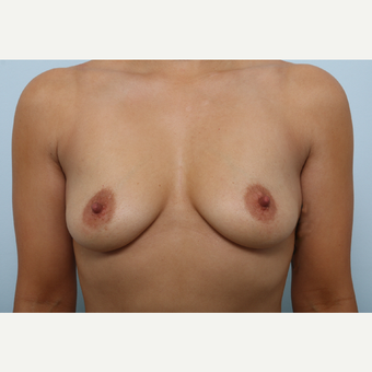 Breast Augmentation before 3345178