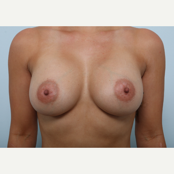 Breast Augmentation after 3345178