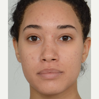 25-34 year old woman treated with Rhinoplasty before 3808555