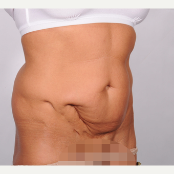 No Drain Tummy Tuck before 2693207