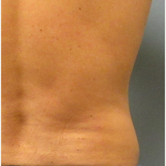25-34 year old man treated with CoolSculpting before 3763869