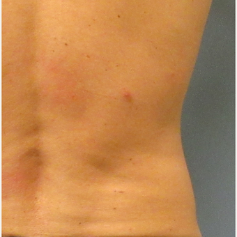 25-34 year old man treated with CoolSculpting after 3763869