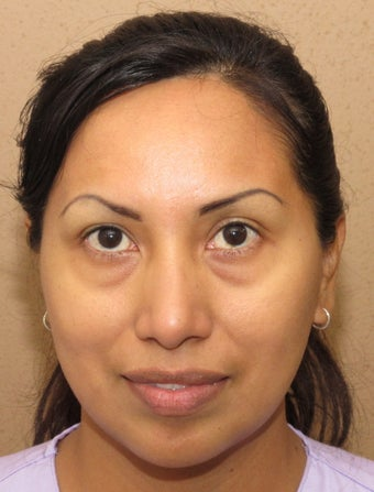 Facial remodeling with lower blepharoplasty and midface lift