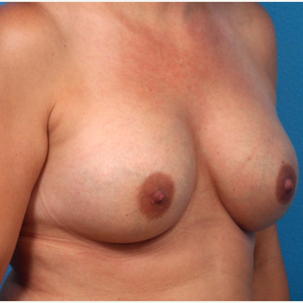 35-44 year old woman treated with Breast Augmentation after 3366918