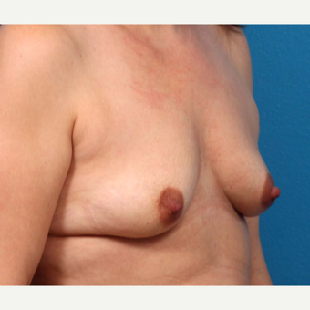 35-44 year old woman treated with Breast Augmentation before 3366918
