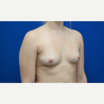 25-34 year old woman treated with Breast Augmentation before 3103026